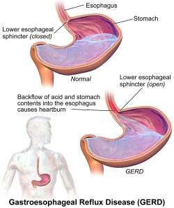 Acid Reflux in Sanford NC